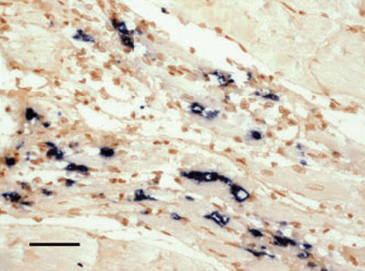 Histological Page For Infectious Myonecrosis