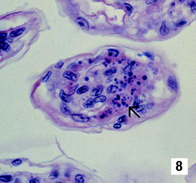 Accutane And Diagnosis Of Ulcerative Colitis